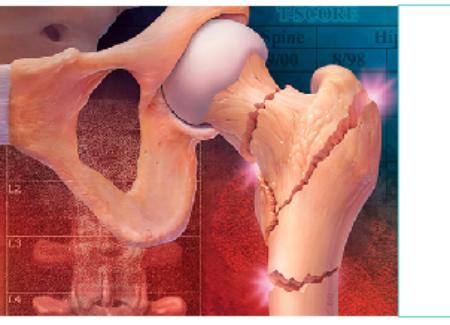 SABADELL_2º Curso de Osteoporosis  y otras Enfermedades Metabólicas Óseas para Médicos Residentes
